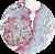 Cancerul de col uterin – posibilităţi de diagnostic precoce - Synevo