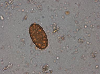 diagnosticul preparatelor parazitare tratarea paraziților în izhevsk