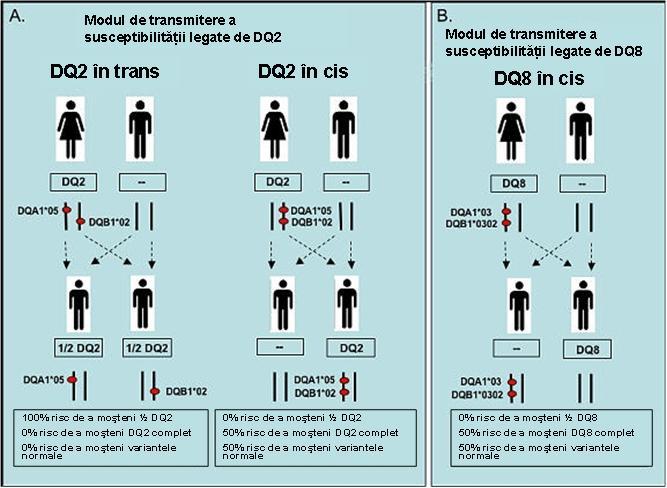 boala celiaca