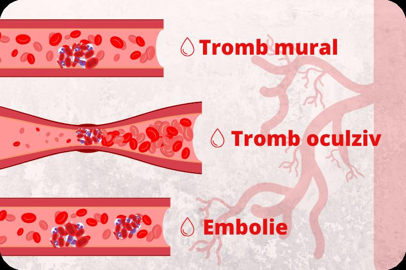 tromboza, trombofilie