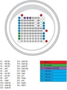 Borrelia-Anticorpi IgG, IgM (Blot) - Synevo
