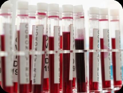 anticorpi igg covid-19