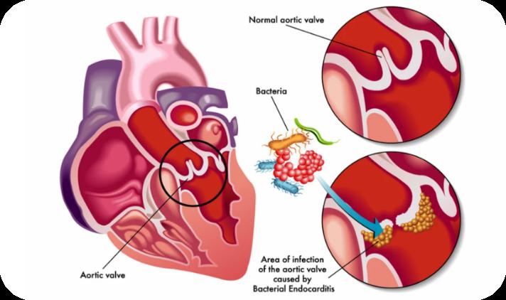 endocardita, endocard, endocardita infectioasa, endocardita bacteriana, endocardita stafilococica