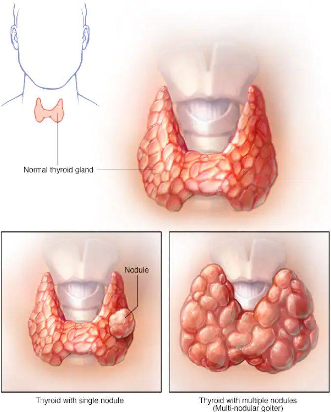gusa, gusa endemica, ce este gusa, gusa tiroidiana, gusa nodulara, gusa micronodulara, gusa multinodulara netoxica